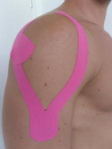 Beispiel für ein Kinesiotape bei Schulterbeschwerden